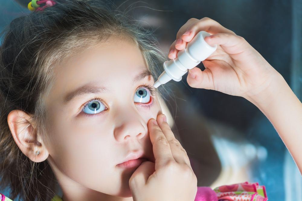 דלקת לחמית אלרגית של העין בילדים